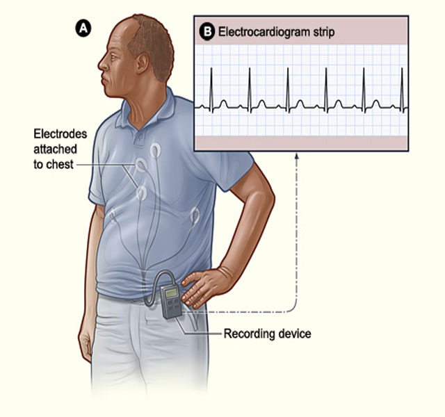 Image of a person wearing a Holter monitor